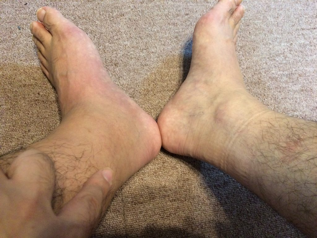アキレス腱 保存療法 3ヶ月目