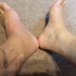 アキレス腱断裂 保存療法 90日目(3ヶ月経過)